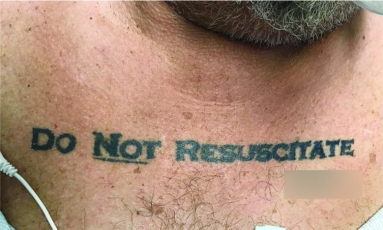 Doctors Face Ethical Nightmare When Discovering Patient's 'Do Not Resuscitate' Tattoo