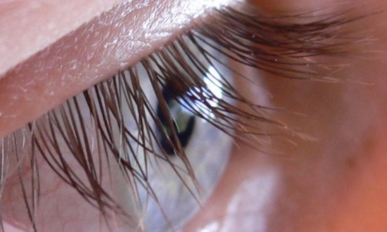 Woman Complained of 'Itchy Eyes,' Then Doctors Make Unusual Find in Her Eyelashes